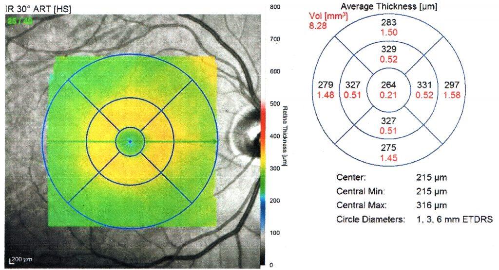 OCT_OD_Retinal_Thickness_Map